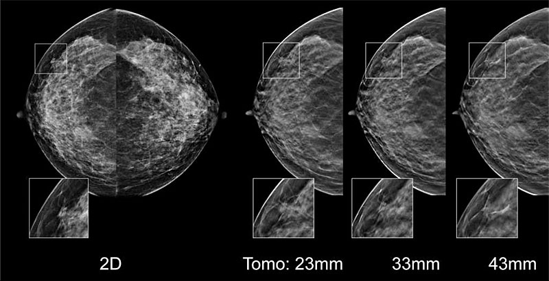 hologic breast tomosynthesis course 3d breast tomosynthesis, us & mri cme for mqsa.